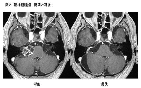 聴神経腫瘍|千葉大学大学院医学研究院 脳神経外科学